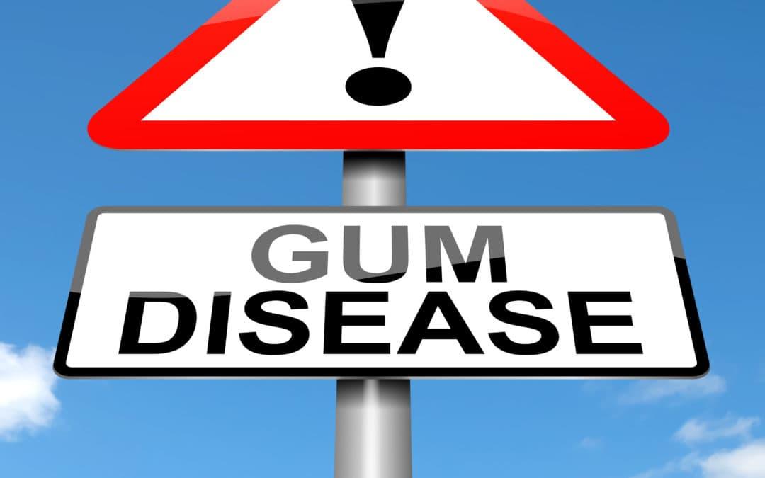 Top 4 Causes of Gum Disease